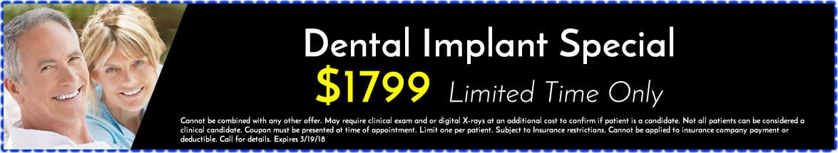 Dental Implant Special Huntington Beach CA
