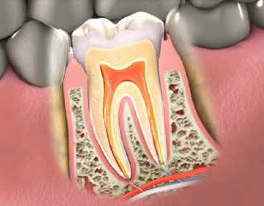 rootcanal2014