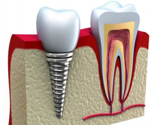 dental implants dentist in Huntington Beach