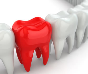 Emergency dentist in Huntington Beach