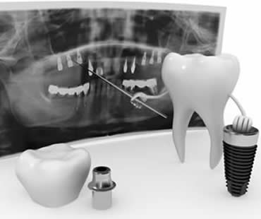 Recommended Diet Following Dental Implant Surgery