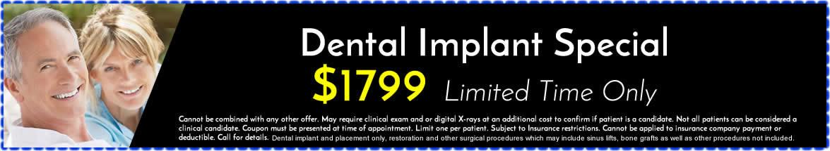 dentimplantsspecial