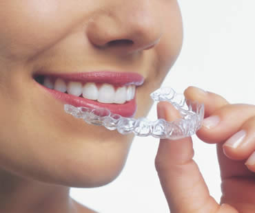 Invisalign and Children – A Good Fit?