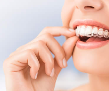 Keep Your Mouth Healthier by Choosing Invisalign Over Traditional Braces