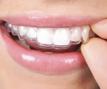 Invisalign and Older Smiles