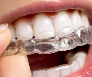 Getting a Stylish New Smile through Invisalign