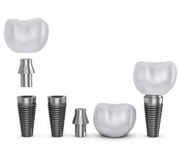 dental-implants-20